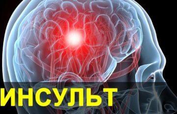 Инсульт. Признаки, симптомы, диагностика